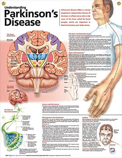 Parkinson S Disease Diagnosis
