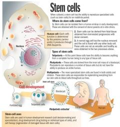 Parkinson S Disease Stem Cell Treatment
